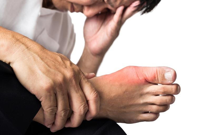 Gout là nguyên nhân sỏi thận