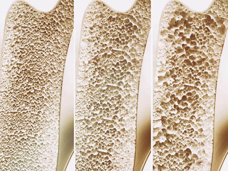 Nguyên nhân gây bệnh loãng xương