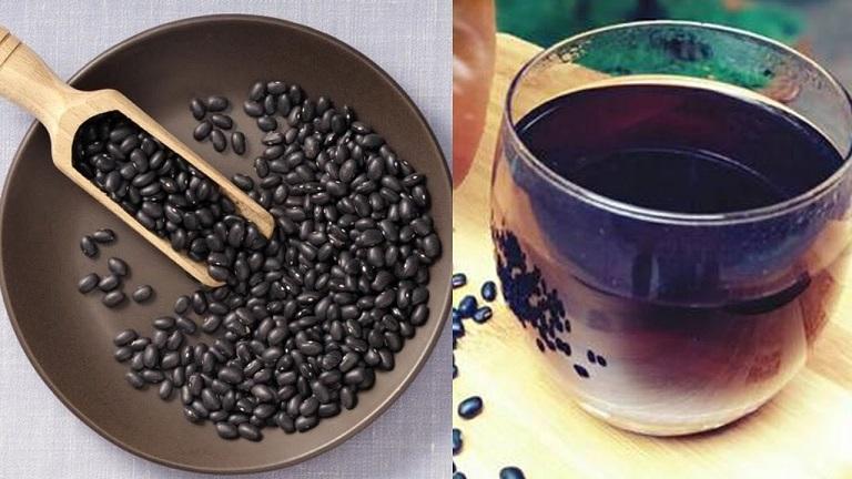 Người bệnh gút nên uống nước đậu đen để cải thiện tình trạng