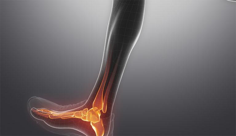 thoái hóa cổ chân