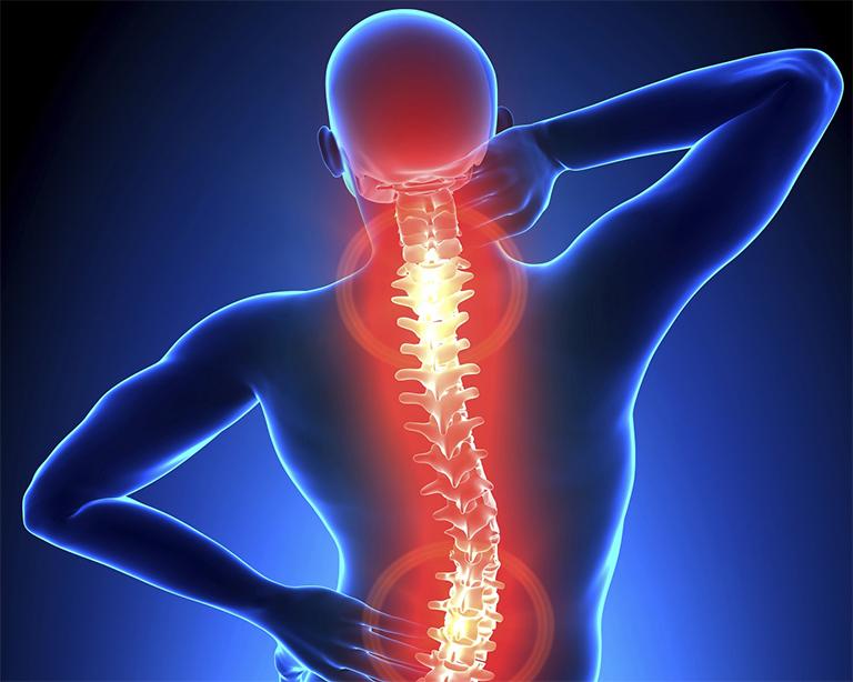 Đau lưng, cổ, vai gáy,... là các dấu hiệu chính của thoái hóa cột sống