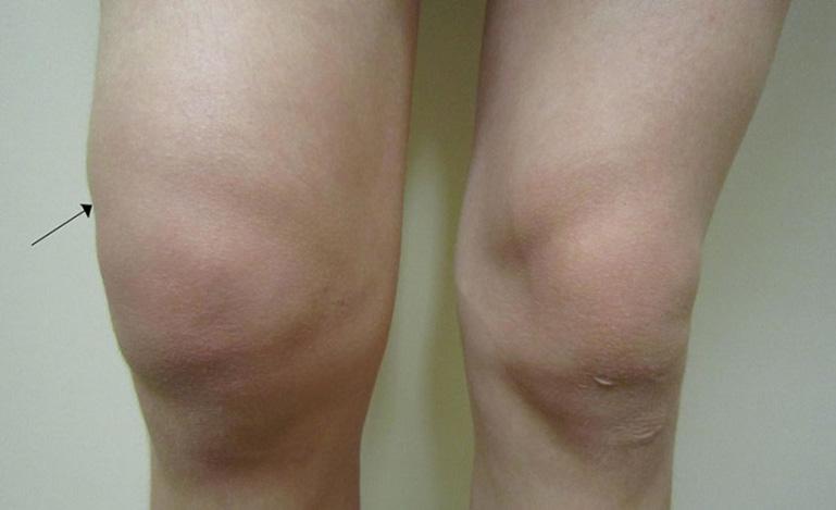 triệu chứng của tràn dịch khớp gối