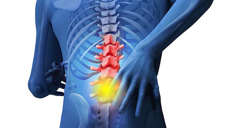 chữa đau lưng ở người già