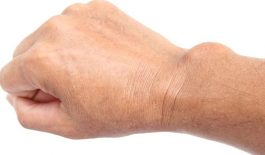Tìm hiểu về bệnh u bao hoạt dịch khớp cổ tay và cách điều trị
