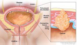 Ung thư bàng quang giai đoạn 3