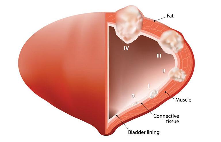 ung thư bàng quang giai đoạn 2