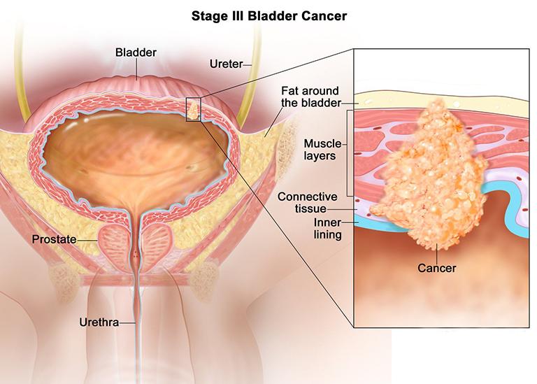 Ung thư bàng quang sống được bao lâu? Người bệnh nên làm gì?