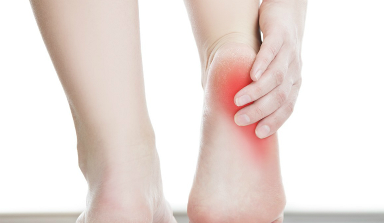 Bệnh viêm cân gan bàn chân là một căn bệnh rất phổ biến trong cộng đồng.