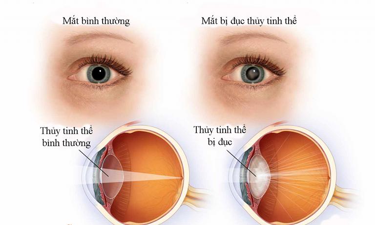 Đục thủy tinh thể là biến chứng của bệnh viêm màng bồ đào