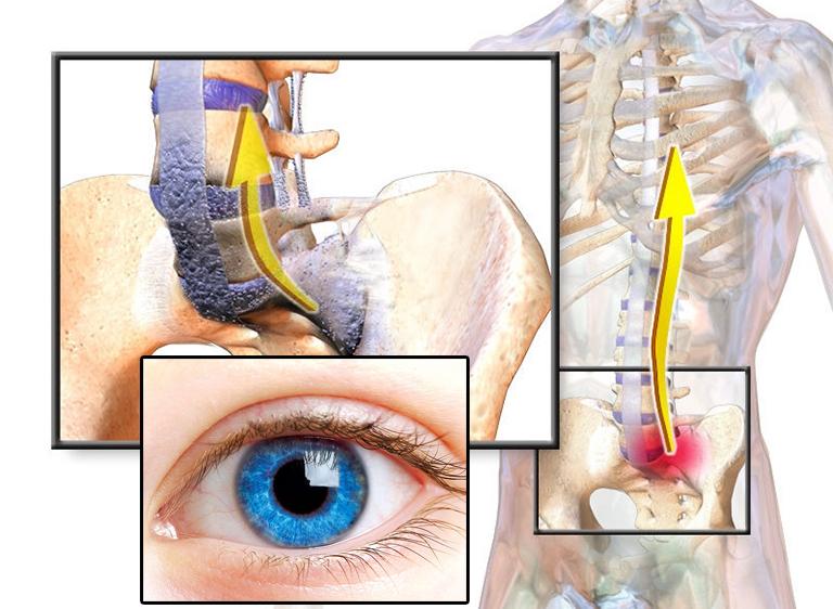 Viêm cột sống dính khớp gây ảnh hưởng đến mắt?