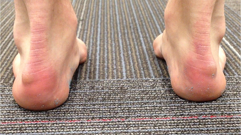 Viêm gân gót chân là bệnh gì?