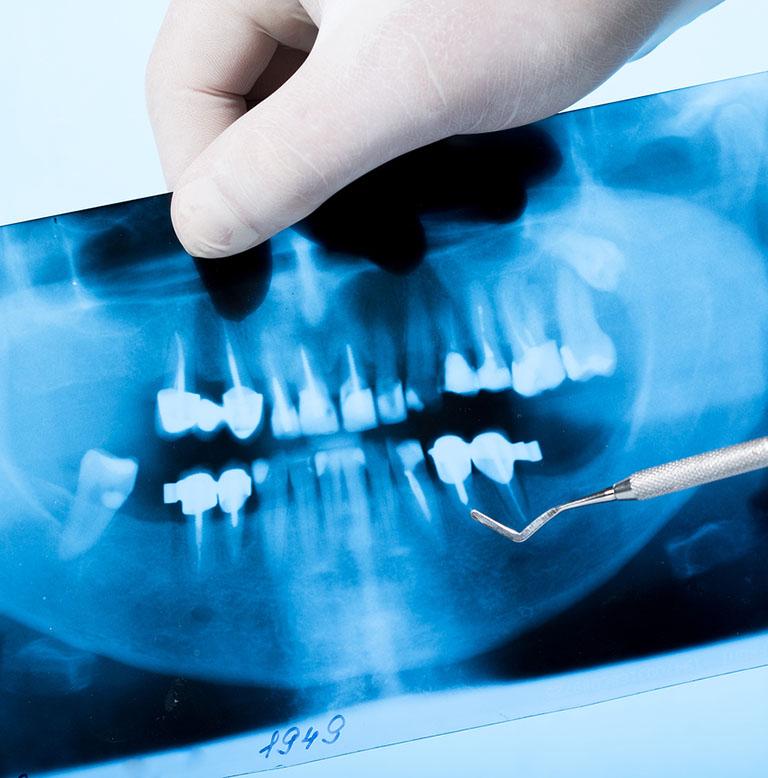 kỹ thuật chẩn đoán viêm tủy xương hàm