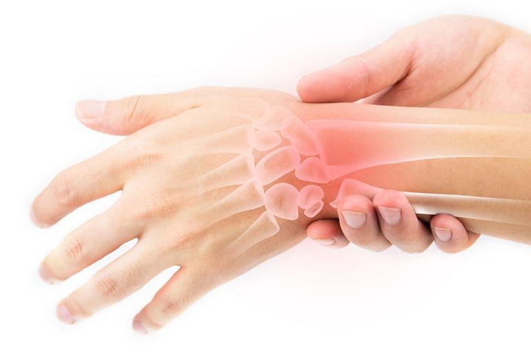 Viêm khớp nhiễm khuẩn là biến chứng của bệnh viêm xương tủy