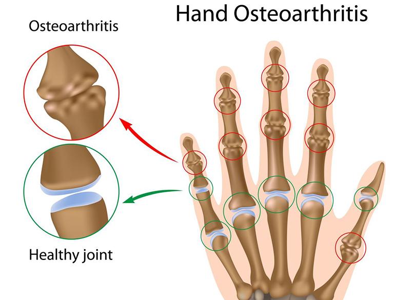 Nguyên nhân, biểu hiện và cách điều trị bệnh viêm xương tủy