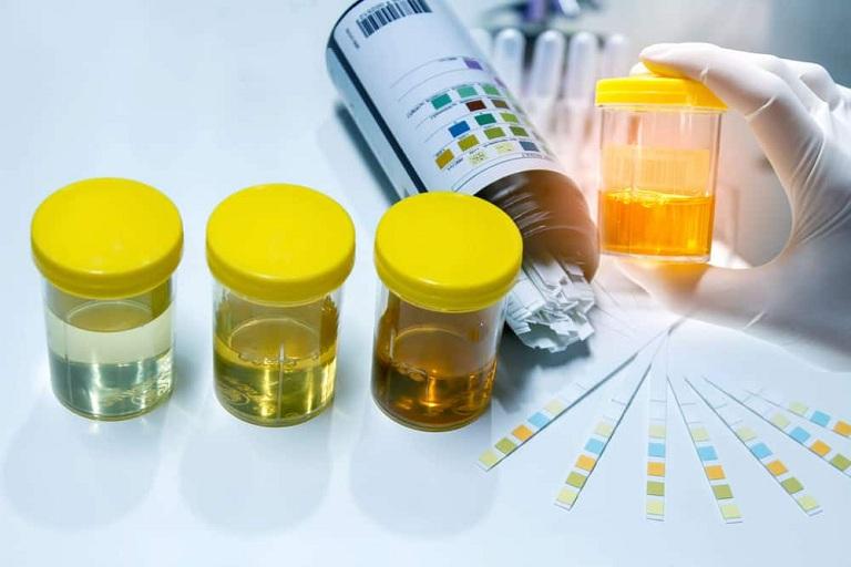 xét nghiệm nước tiểu trước khi áp dụng phương pháp tán sỏi thận qua da