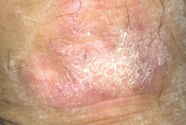 Hình ảnh bệnh chàm sinh dục