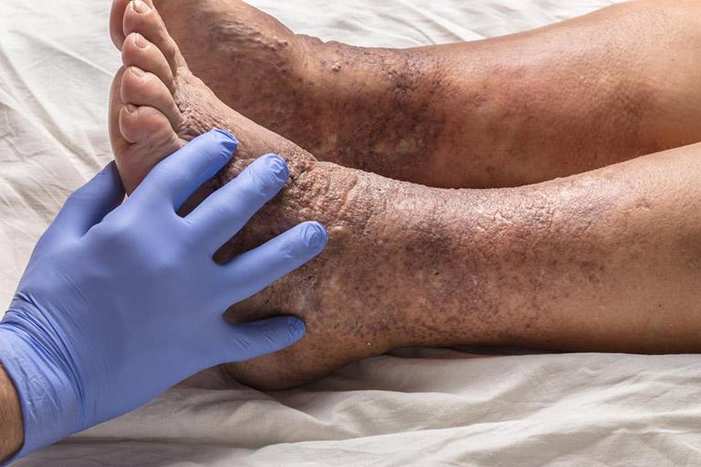 nguyên nhân eczema