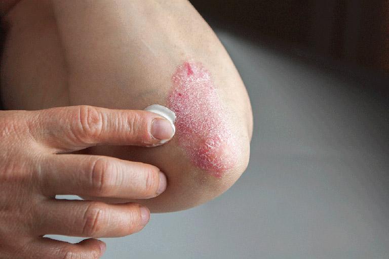 cách chữa eczema