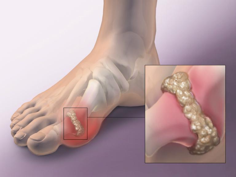 Axit uric không được đào thải hết ra khỏi cơ thể sẽ lắng đọng tại các khớp. Chúng chuyển hóa thành tinh thể muối urat, gây viêm, sưng đau ở các khớp chân, tay.