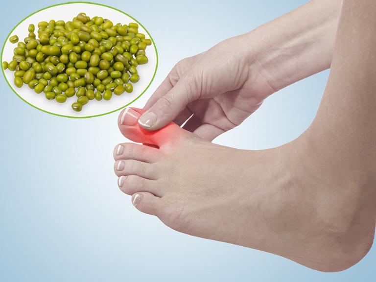 Bài thuốc chữa bệnh gout bằng đậu xanh có tác dụng gì?