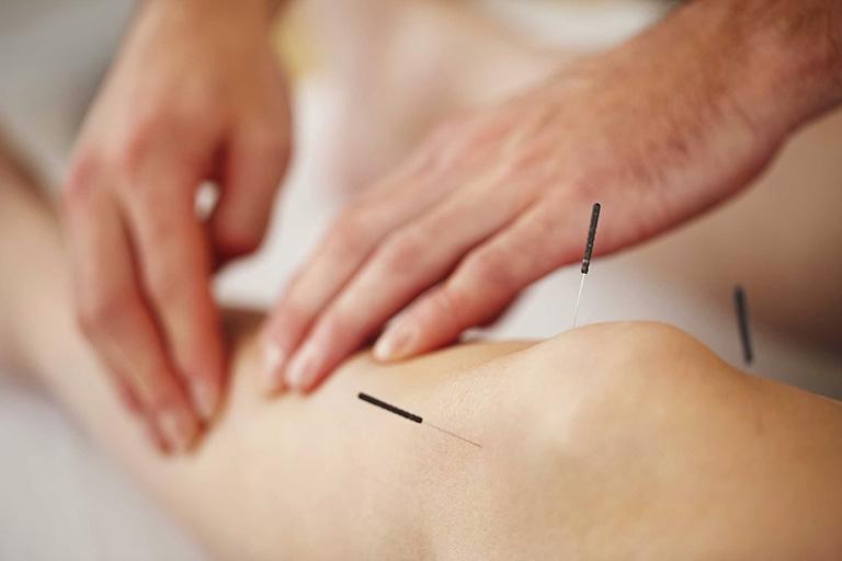 Châm cứu là một trong các phương pháp thường được áp dụng để điều trị thoái hóa khớp gối