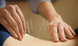 Tìm hiểu về phương pháp chữa đau thần kinh tọa bằng châm cứu