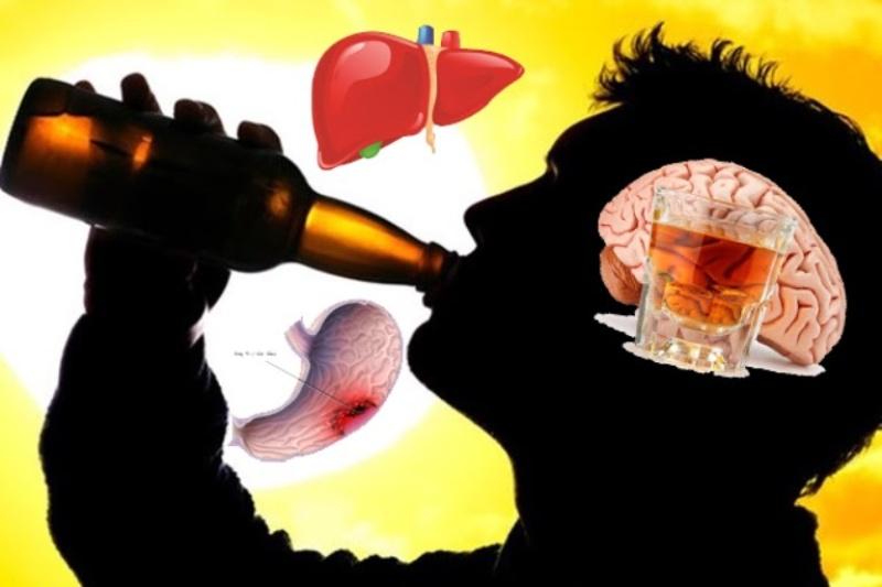 Rượu bia gây đau dạ dày