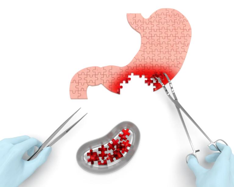 Rau ngổ có thể giúp bạn phòng ngừa và điều trị bệnh ung thư, đặc biệt là bệnh ung thư dạ dày, ung thư tiền liệt tuyến.