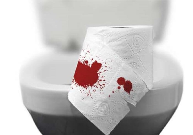 Đi ngoài ra máu là dấu hiệu bệnh lý mãn tính