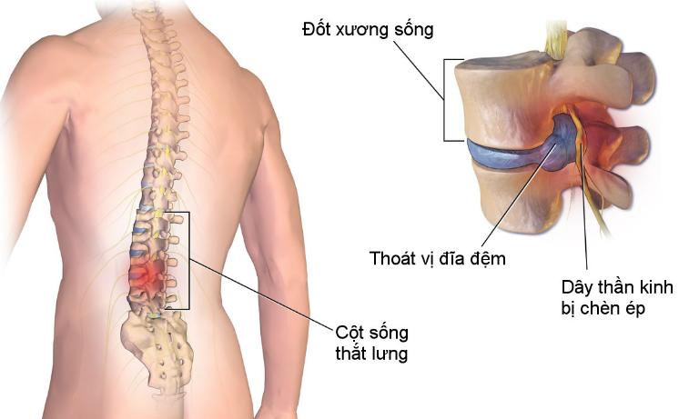 Bệnh đau dây thần kinh tọa xuất phát từ nhiều nguyên nhân khác nhau.