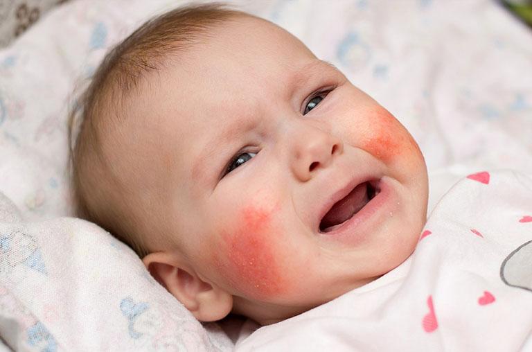 bé bị viêm da dị ứng thời tiết