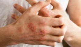 Bệnh chàm là bệnh da liễu, gây ngứa rát khó chịu cho người bệnh.