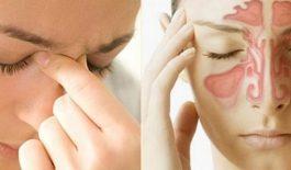 Các biến chứng do viêm mũi dị ứng gồm polyp mũi, viêm xoang, nhiễm trùng tai