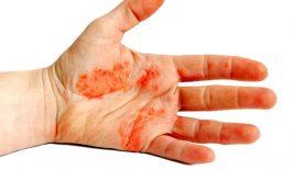 Bệnh nhân chàm có thể trị bệnh tại nhà bằng một số cách như: tự chăm sóc vùng da bị tổn thương, ngâm rửa hàng ngày, bôi thuốc từ thảo dược,...