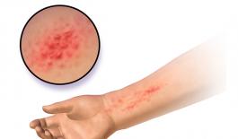 Bệnh chàm tiếp xúc là một loại viêm da do tiếp xúc với chất có hại