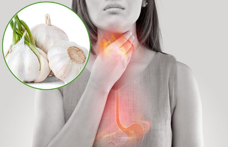 3 cách chữa trào ngược dạ dày bằng tỏi đơn giản