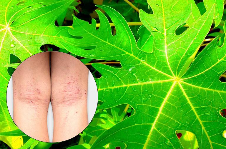 Cách chữa viêm da cơ địa bằng lá đu đủ tại nhà
