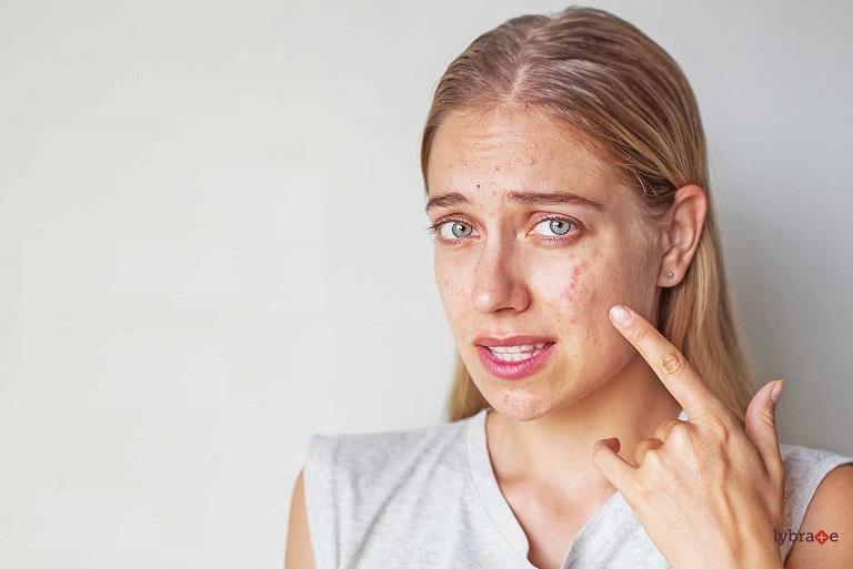 Tình trạng da bị viêm do dị ứng mỹ phẩm