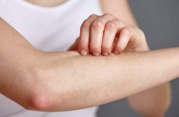 Hà Nội và TP.HCM có một số cơ sở y tế uy tín khám viêm da dị ứng.