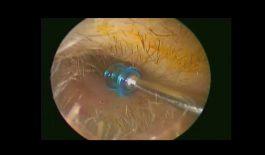 Thông tin về phương pháp đặt ống chữa viêm tai giữa