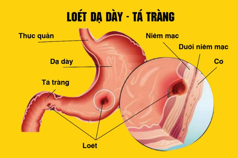 Thuốc Topenti có tác dụng điều trị và điều trị dự phòng bệnh loét dạ dày, loét tá tràng, viêm thực quản, hội chứng Zollinger - Ellison, chứng trào ngược axit,...