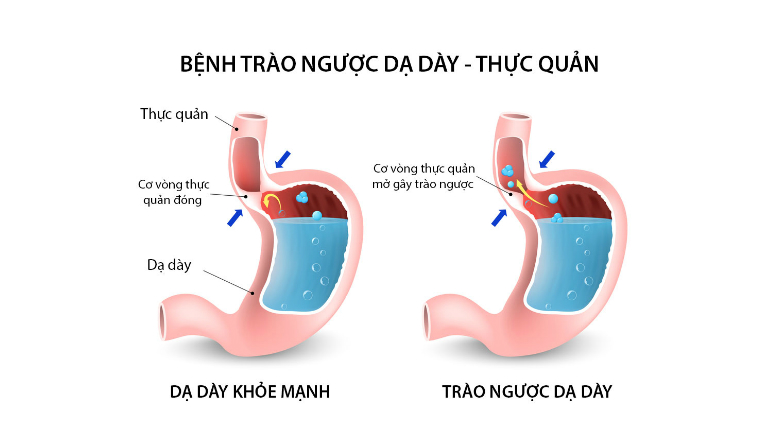 Trào ngược thực quản dạ dày có thể chữa được bằng một số bài thuốc nam.