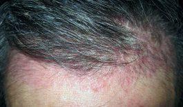 Tìm hiểu về bệnh viêm da dầu có mủ và cách điều trị