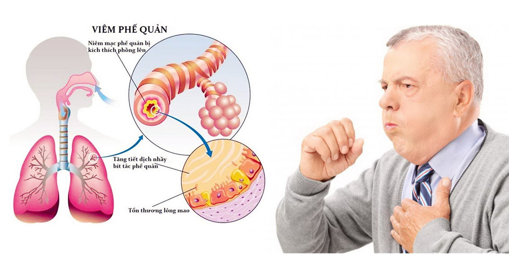 Viêm phế quản là một bệnh về đường hô hấp do vi khuẩn, virus và các chất kích thích gây ra