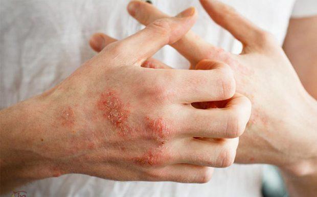 Chàm hóa da là gì? Cách điều trị như thế nào?