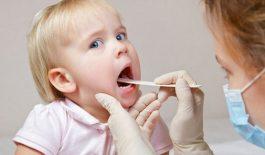 Tìm hiểu bệnh viêm họng cấp ở trẻ em và cách chữa trị