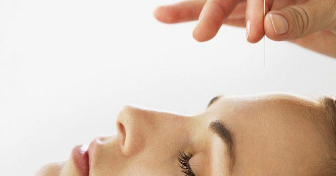 Tìm hiểu phương pháp cấy chỉ chữa bệnh viêm mũi dị ứng