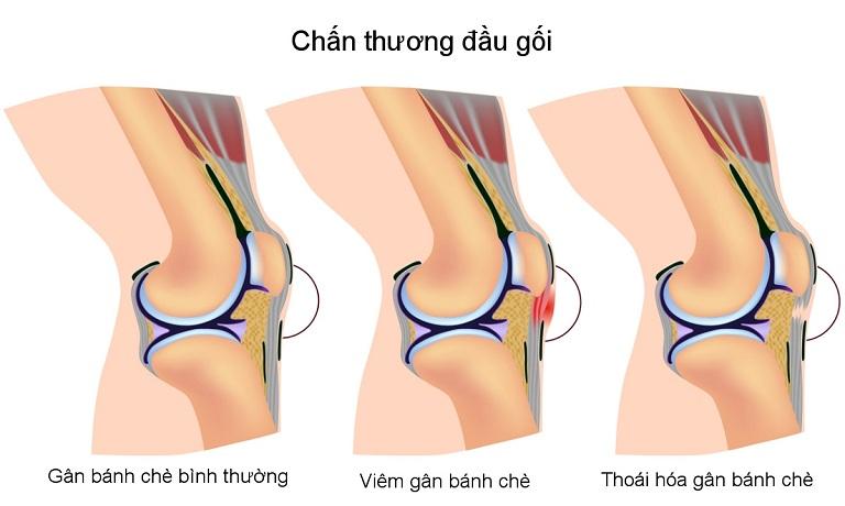 Chấn thương đầu gối cũng gây nên tình trạng sưng