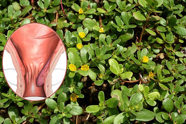 Cách chữa bệnh trĩ bằng cây rau sam trong vườn