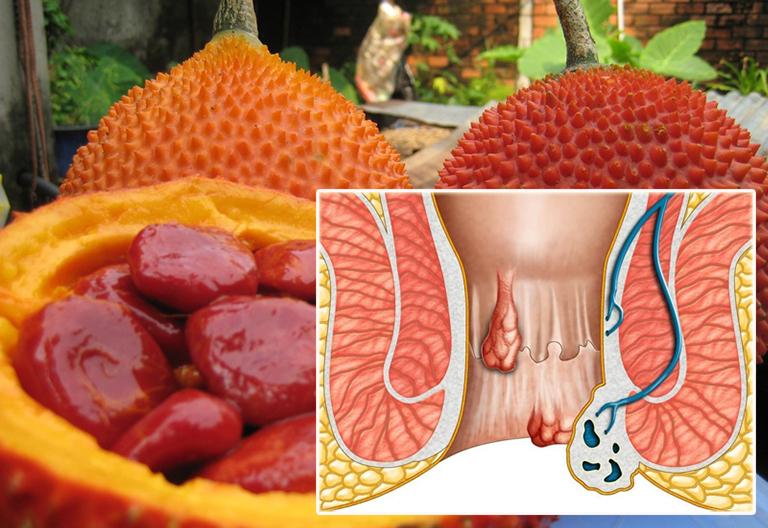 Công dụng chữa bệnh trĩ từ hạt gấc